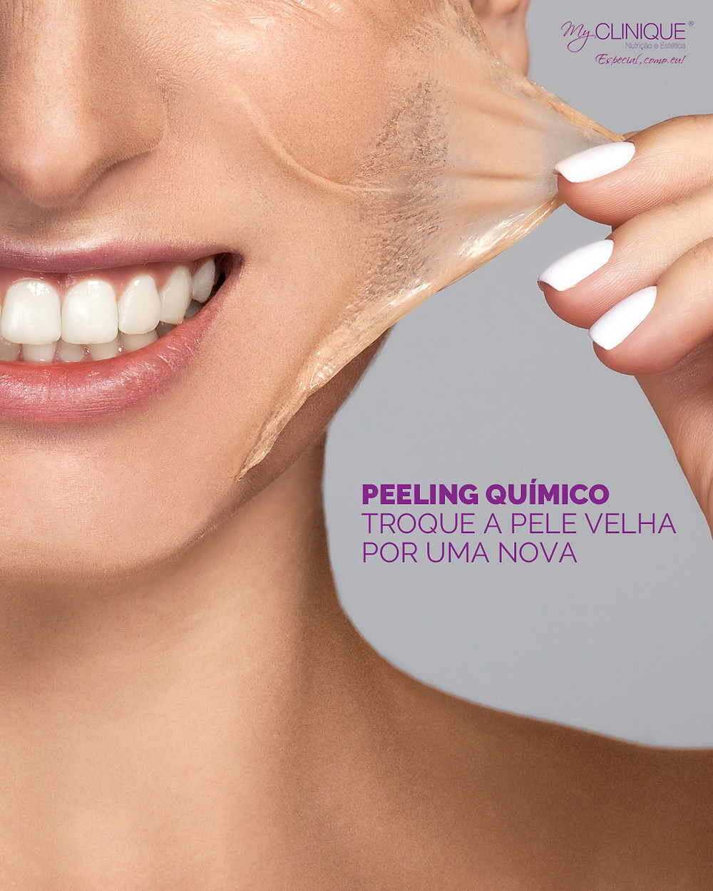 myclinique peeling quimico