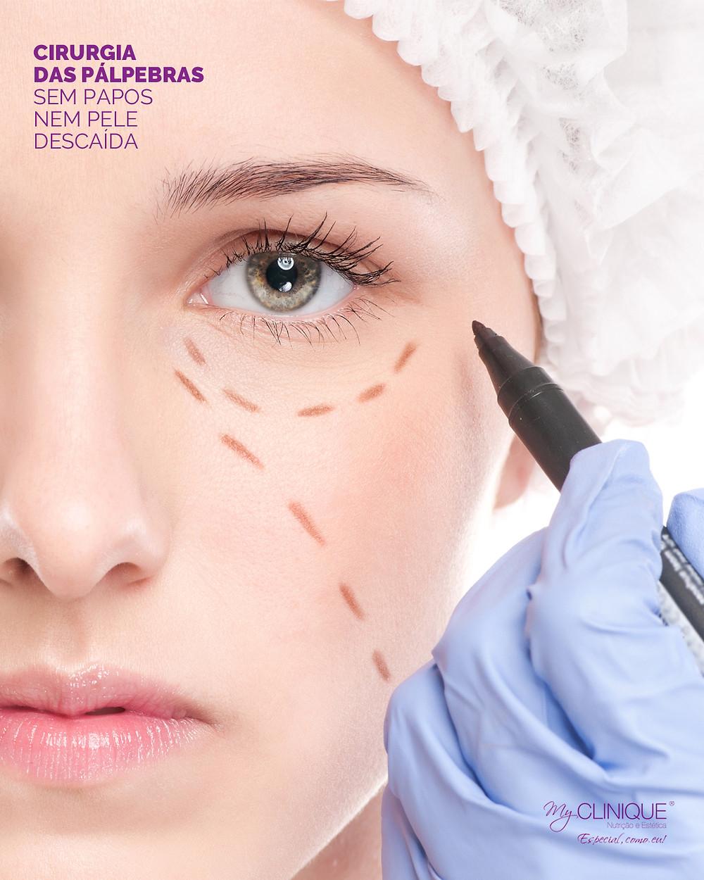 myclinique cirurgia das palpebras