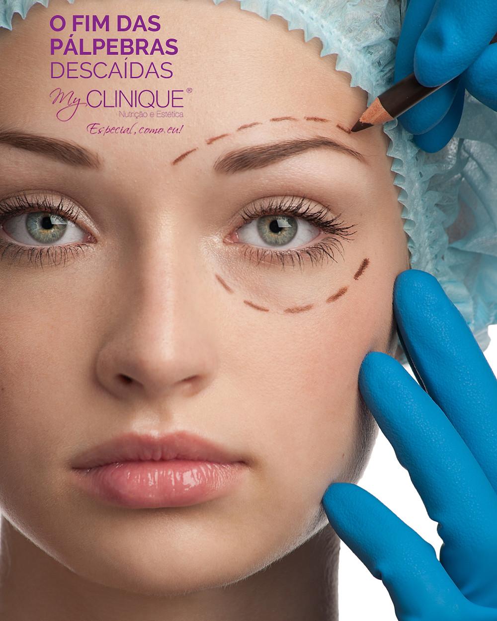 myclinique blefaroplastia cirurgia das palpebras
