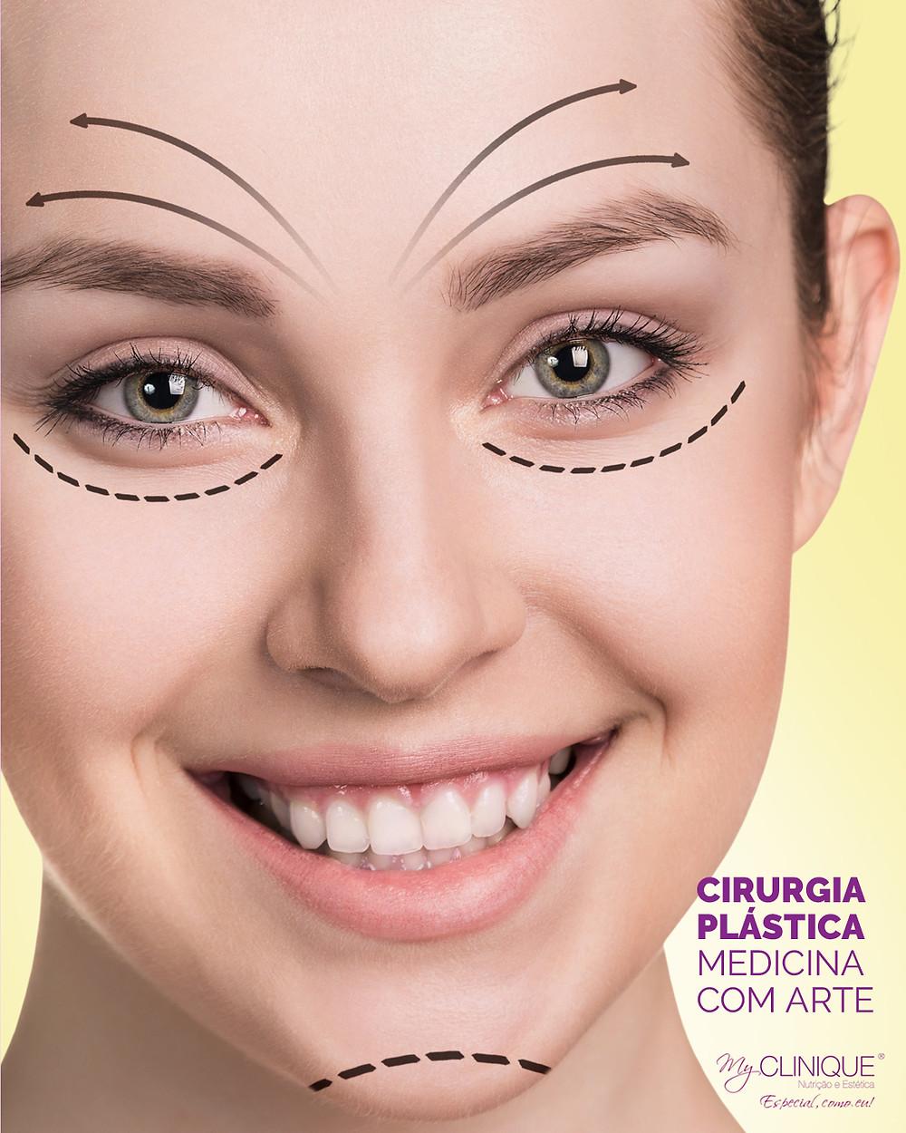 myclinique cirurgia plastica rosto