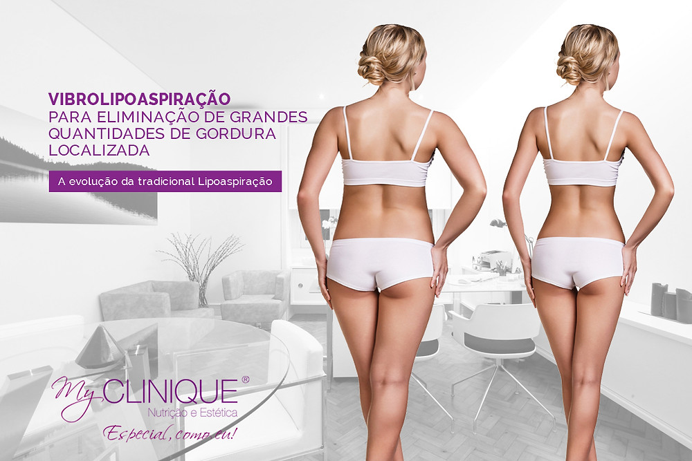 myclinique vibrolipo