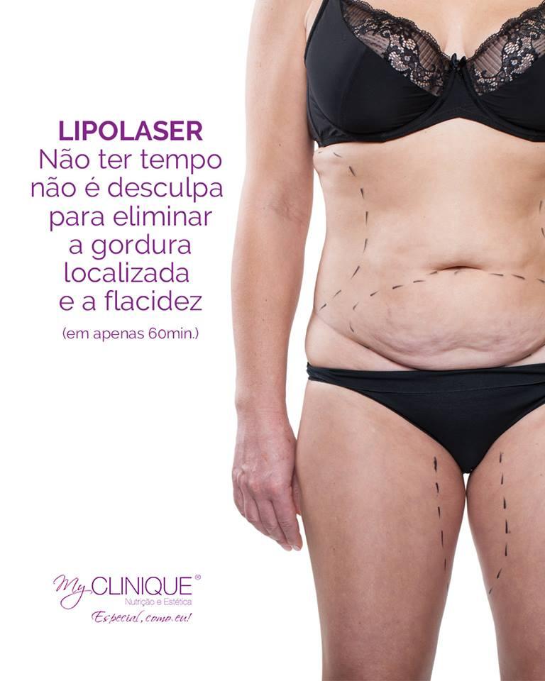 myclinique lipolaser