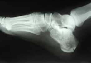 Recovery Guide: Calcaneal Fracture