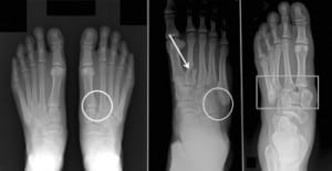 Recovery Guide: Lisfranc Fracture