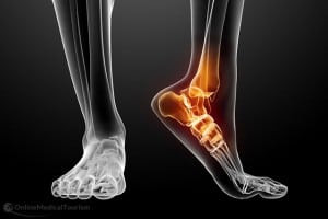 Recovery Guide: Ankle Arthrodesis (Fusion)