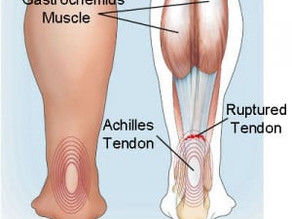 Recovery Guide: Achilles Tendon Rupture