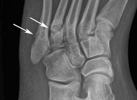 Recovery Guide: Foot Fracture