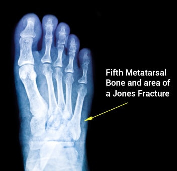 Recovery Guide: Jones Fracture