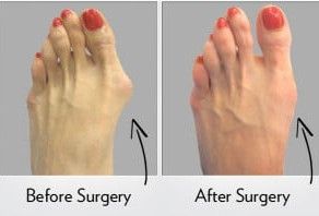 Recovery Guide: Bunionectomy