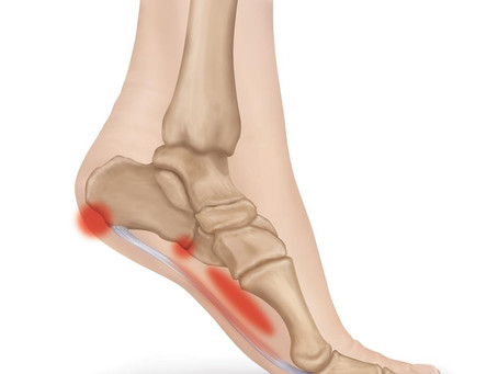 Recovery Guide : Plantar Fasciitis