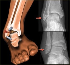 Recovery Guide: Ankle Fracture
