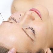 lifting-acupuntura.jpg