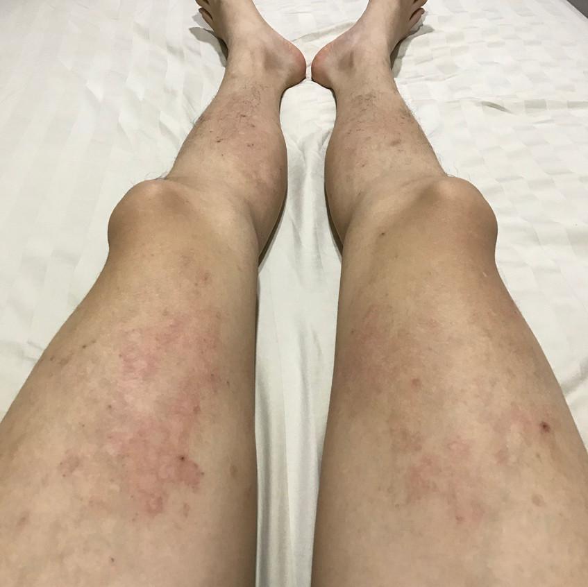 Thigh Eczema (Before)