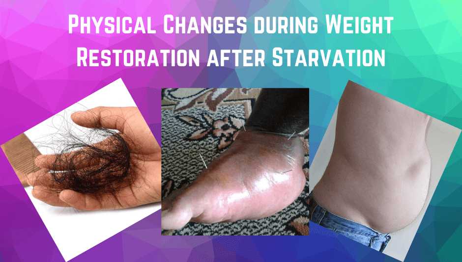 Physical Changes during Weight Restoration after Starvation