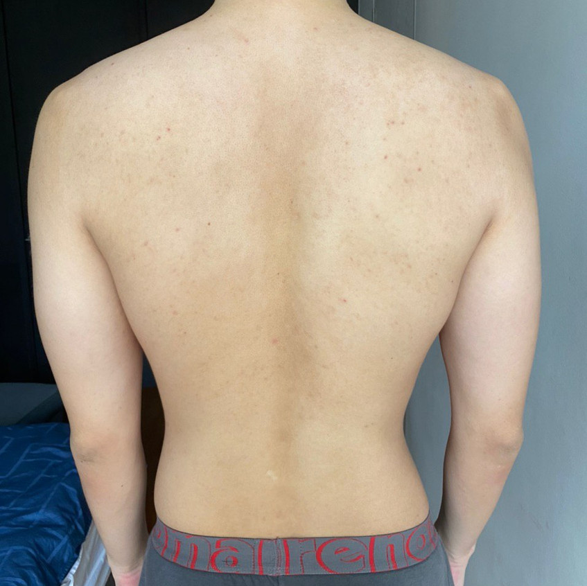 Back Eczema Recovered (After)
