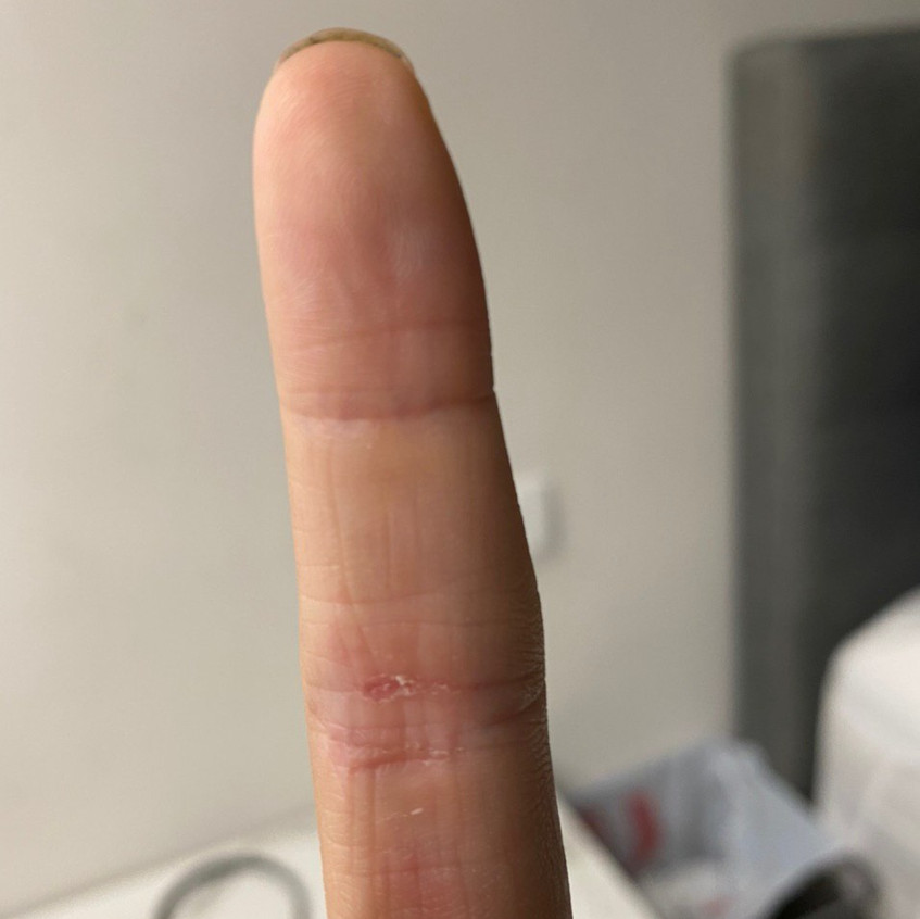 Finger Eczema Recovered (After)