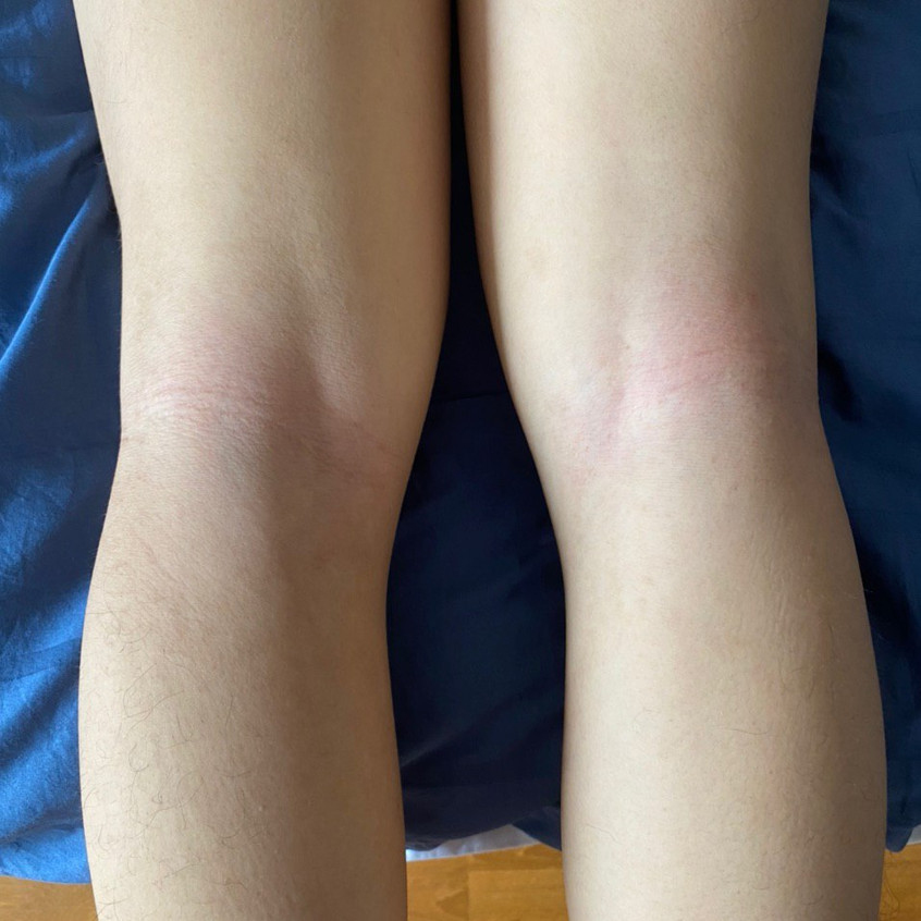 Behind Knee Eczema Recovered (After)