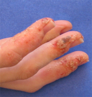 Dyshidrotic Eczema - Small itchy fluid-filled blisters at fingers