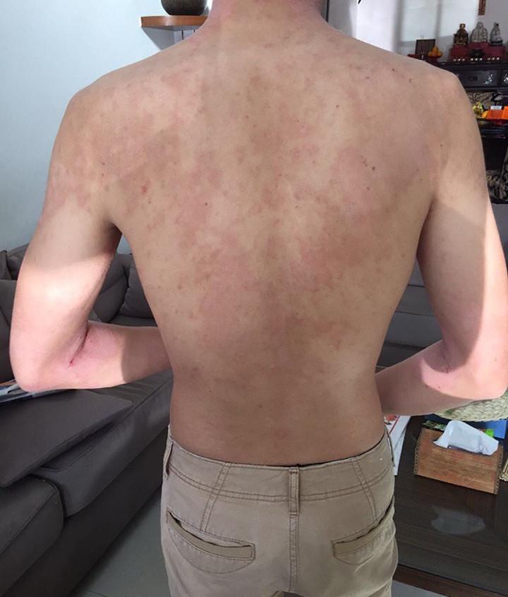 Back Eczema (Before)