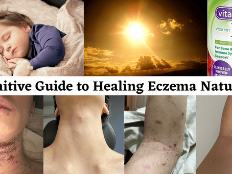 Definitive Guide to Healing Eczema Naturally