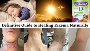 Definitive Guide to Healing Eczema Naturally
