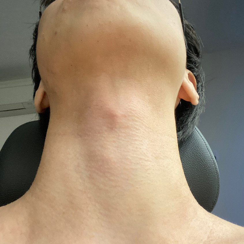 Neck Eczema Recovered (After)