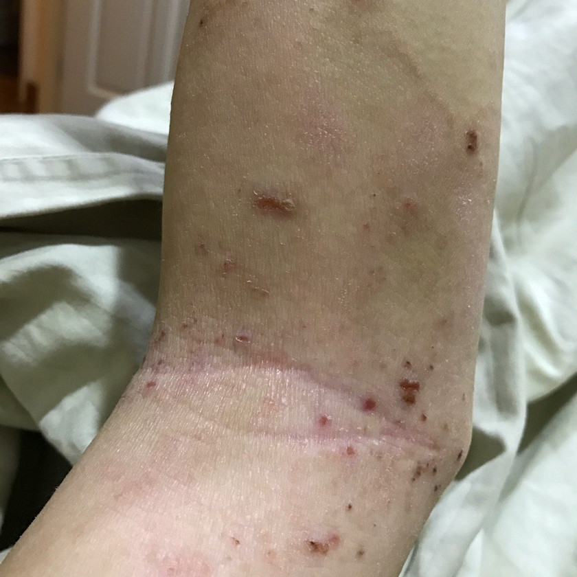 Atopic Dermatitis - persistent red patches