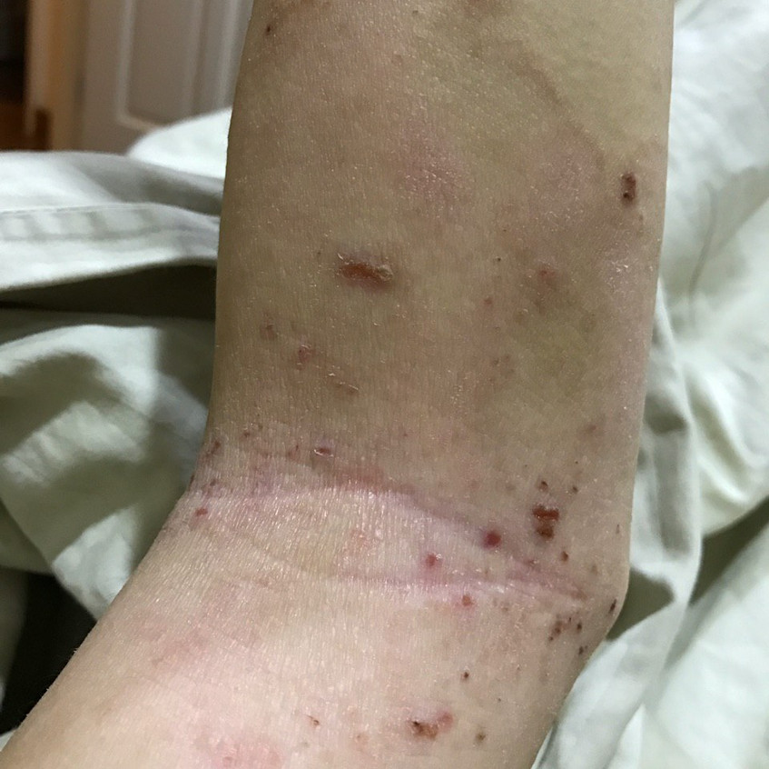 Inner Elbow Eczema (Before)