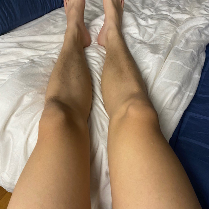Thigh Eczema Recovered (After)