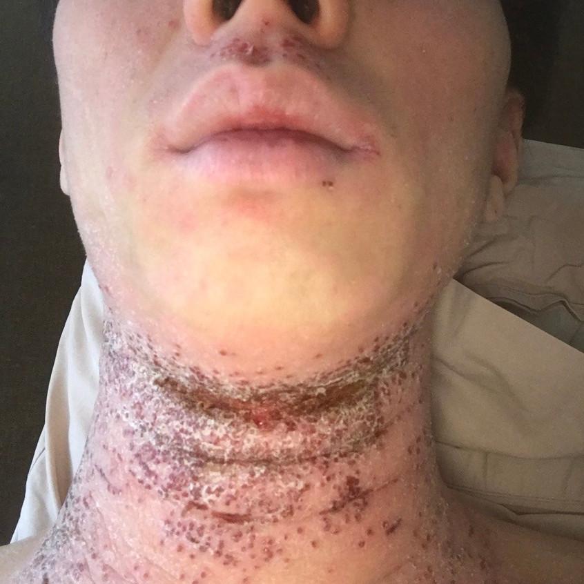 Neck Eczema (Before)