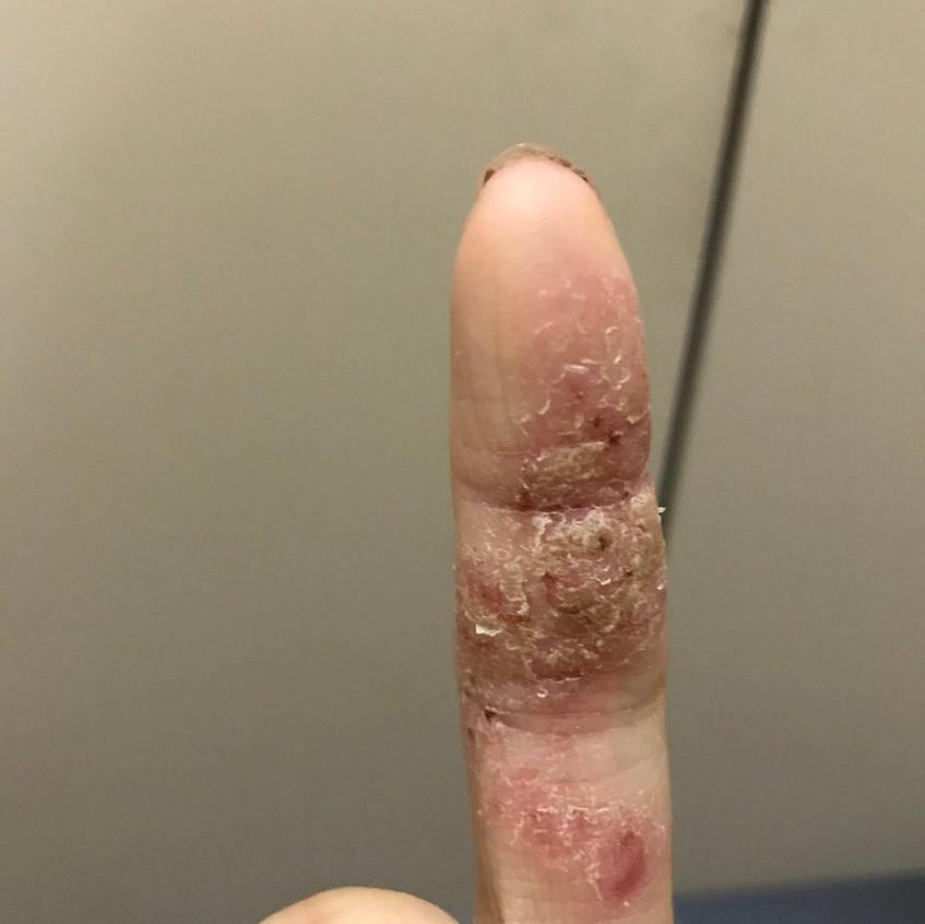 Finger Eczema (Before)