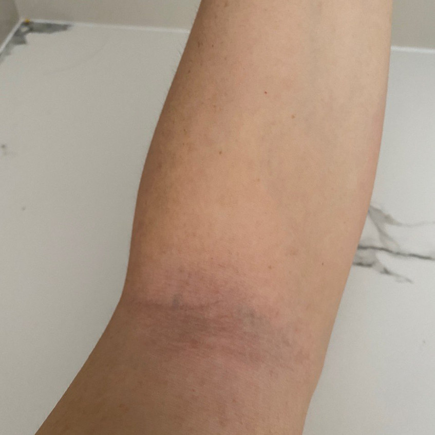 Inner Elbow Eczema Recovered (After)