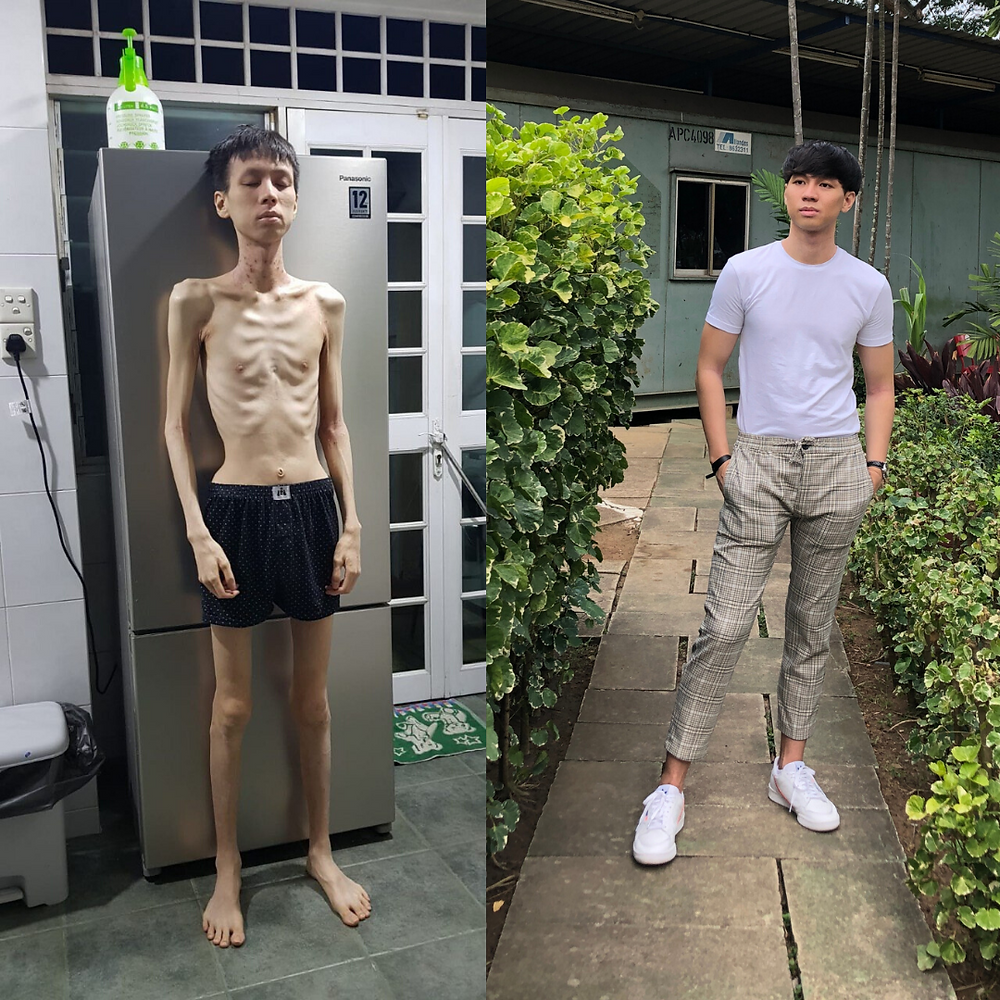 ED Recovery - Before/ After 6 months transformation
