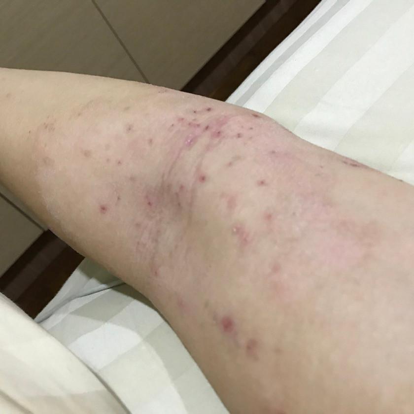 Atopic Dermatitis - inner elbow