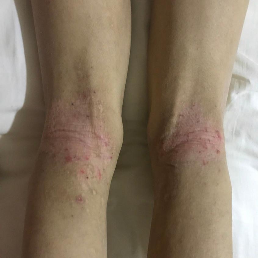 Behind Knee Eczema (Before)
