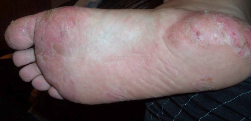 Dyshidrotic Eczema - Small itchy fluid-filled blisters at feet