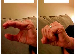Bone Broth & Rheumatoid Arthritis: My Mom's Story