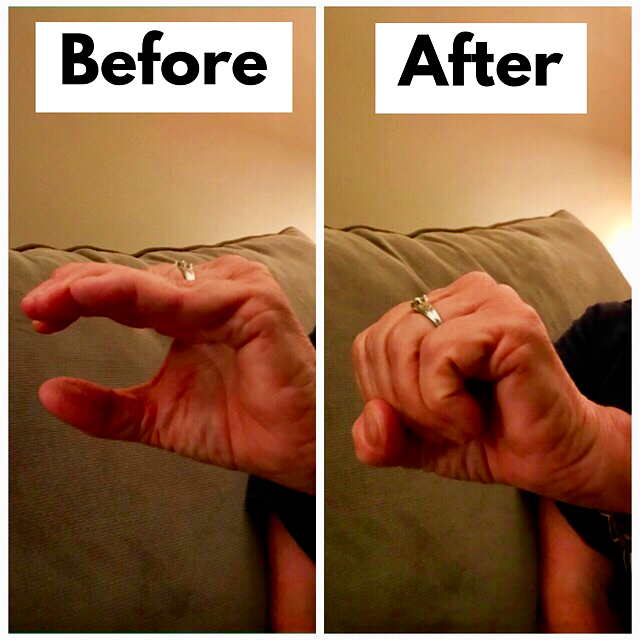Arthritic hand now able to make a full fist