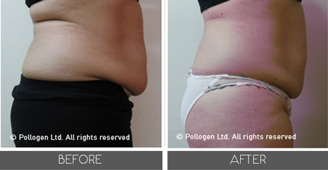 tripollar-fat-reduction-andskin_1.png