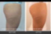 Cellulite_skin_tightening_2.png