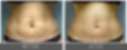 tripollar-fat-reduction-2.png
