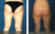 tripollar-fat-reduction-back.png