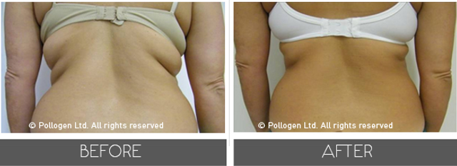 tripollar-fat-reduction-andskin_2.png