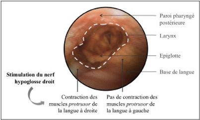 stimulation nerf hypoglosse.jfif