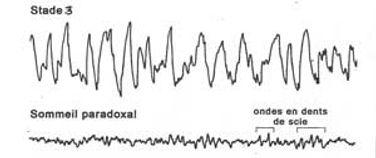 sommeil-stade3-paradoxal-schema2.jpg