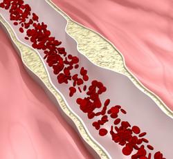 Atherosclerosis Forming