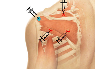 Trigger Point Injection & Prolotherapy for shoulder joint pain