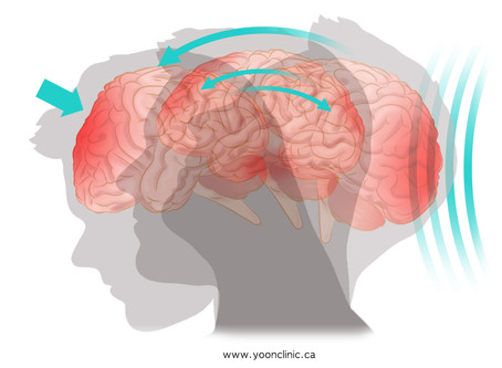 Concussion: Acupuncture Treatment for Sports & Car Accident Injury