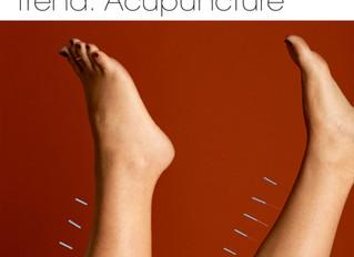 2019's Biggest Wellness Trend: Acupuncture