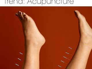 2019's Biggest Wellness Trend: Acupuncture